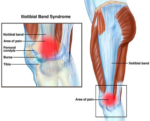 dolor en el tensor de la fascia lata al correr